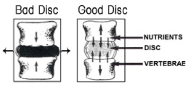 examples of good and bad spinal discs