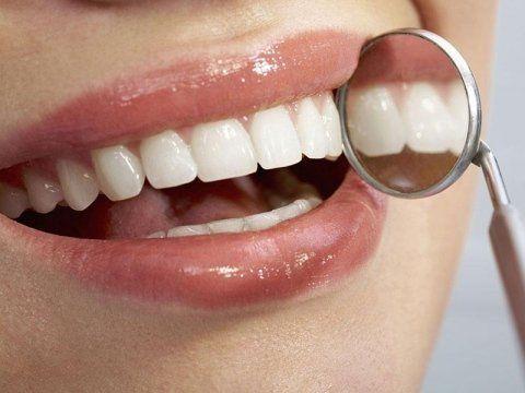 pulizia denti