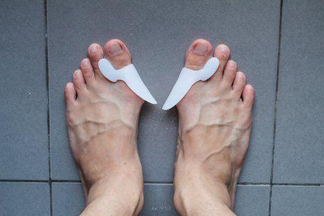 vista dall alto di due piedi paralleli con metatarsalgia