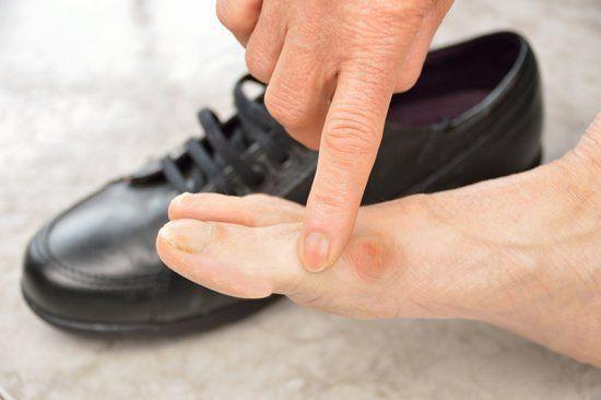 dito indica una verruca su piede e scarpa nera nello sfondo