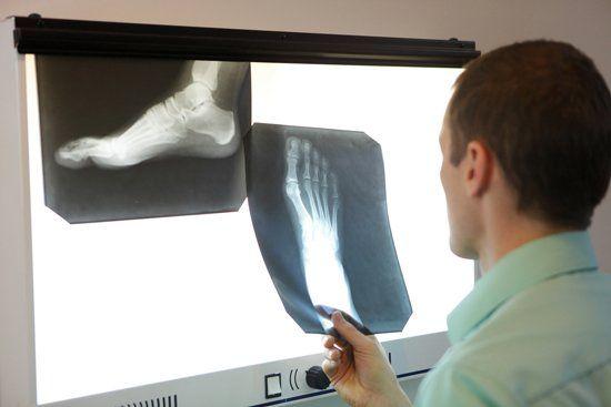 medico analizza radiografie