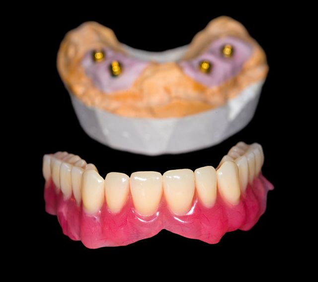 Implant-Supported Dentures vs  Implant-Retained Dentures