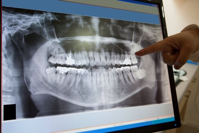 dental crowns white plains, ny