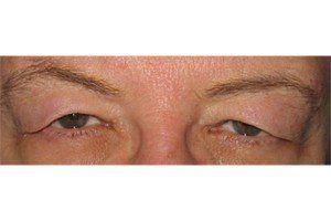 Blepharoplasty- Eyelid Surgery Long Beach | Eye Surgeon Long