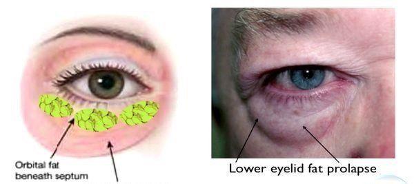 Blepharoplasty- Eyelid Surgery Long Beach   Eye Surgeon Long