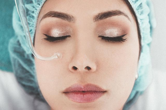 What are Dermal Fillers/Filler Injections?